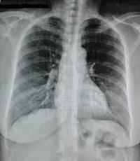 Radiografias Compro