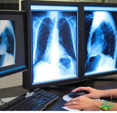 Compramos Rx usados, tomografia,rx industrial e digital